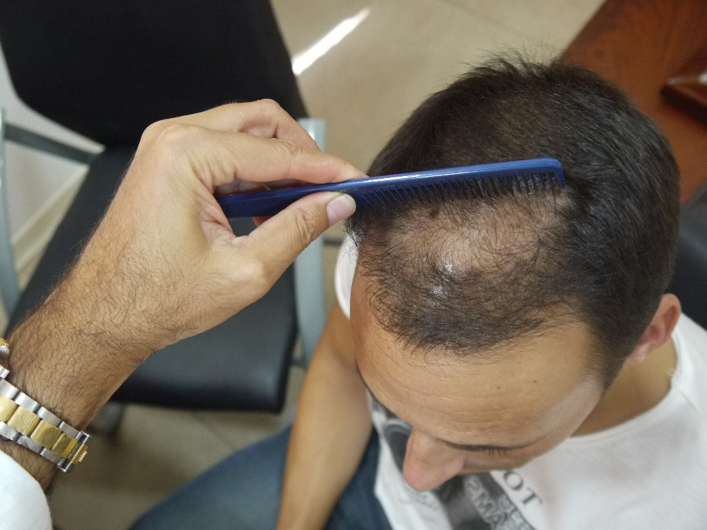 ASSESSING HAIR LOSS