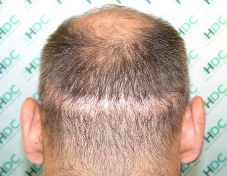 Repair Hair Transplants Surgeries