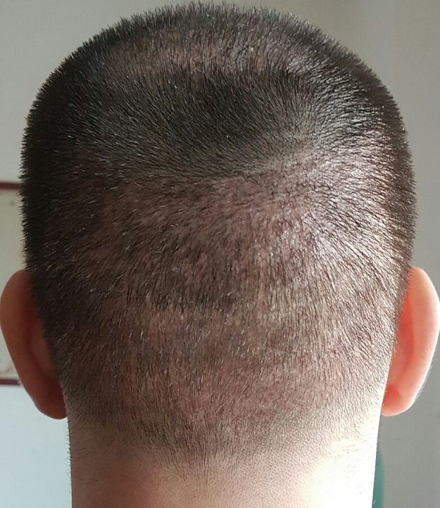 Hair Transplants HDC - Avoid scarring & Donor Depletion in FUE