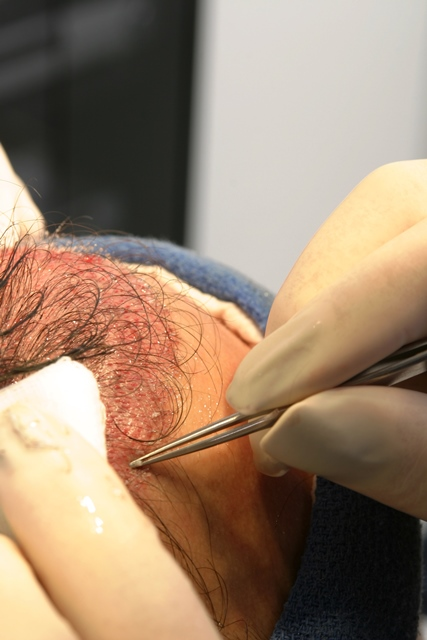 Placing of Grafts with forceps