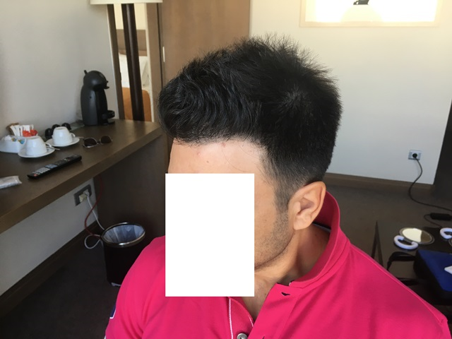 11 months after left side