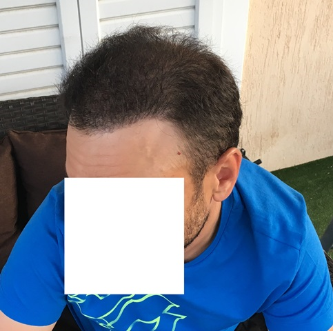 After 5600 Grafts side view