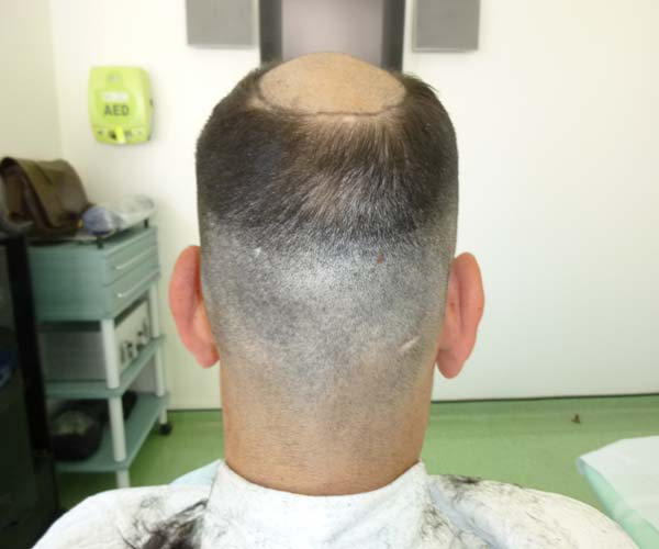 Recipient area before the procedure shaved