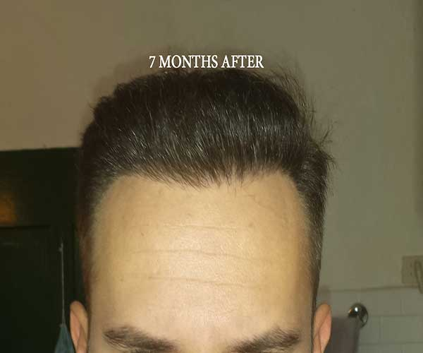 Hairline   7 Months Post Op