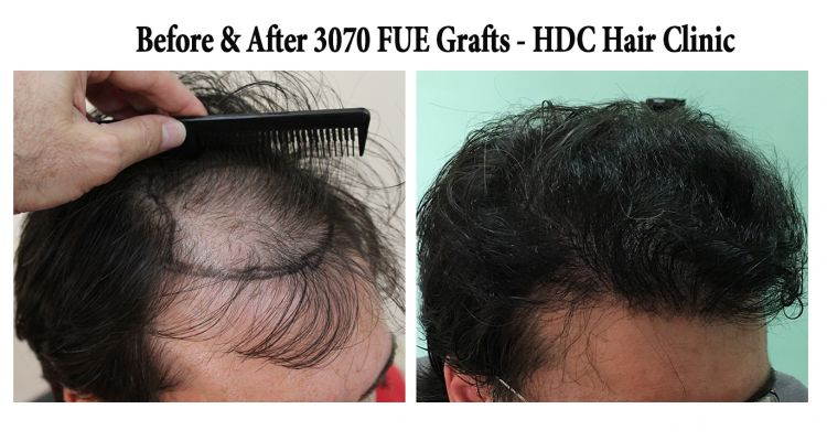 3070 Grafts  Set