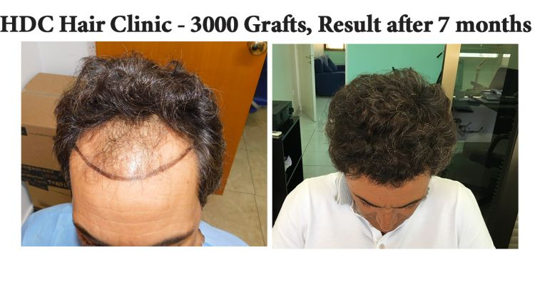 Before And After To View 3000 Grafts   Banay