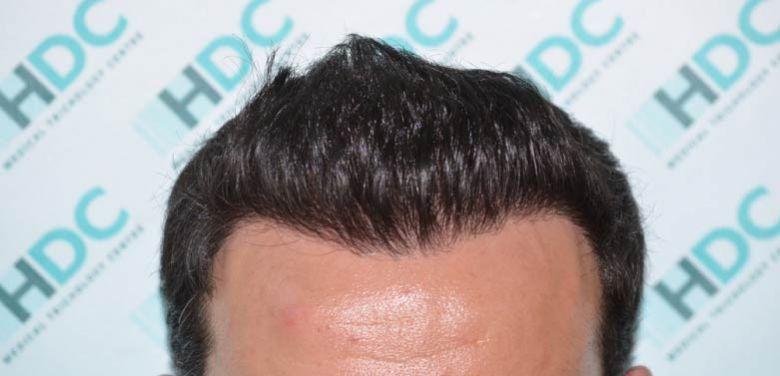 Blog Of Hdc Hair Transplant Centre