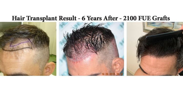 Hair Transplant Result   6 Years After   2100 Grafts   Left Side
