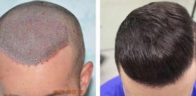 Before with SMP and After 8 months with 3000 FUE