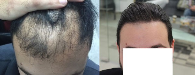 3000 Grafts - Potential NW5 Patient