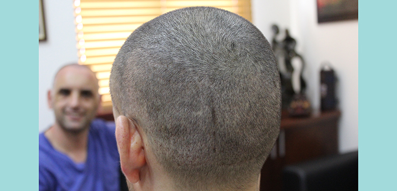 Avoiding swelling and Achieving fast donor Healing in FUE Hair Transplantation