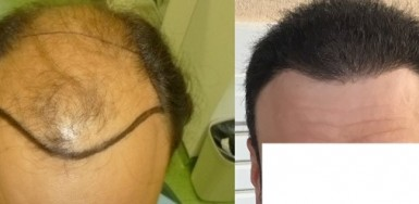 5600 grafts 0 – 6.5 months in 2 hair transplants – Class 6 patient – HDC Hair Clinic