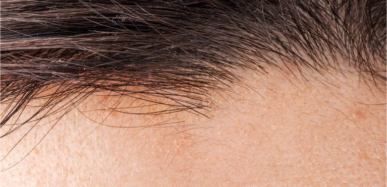 FUE Hair Transplant Post Operation Care: Important or Not?