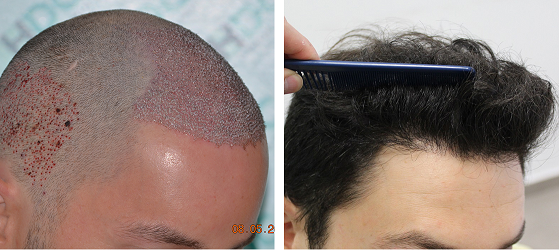 Before and after 1 Year - 3000 FUE grafts