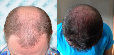 Hair transplant result – 4538 FUE & BEARD FUE – NW6 – HDC Hair Clinic