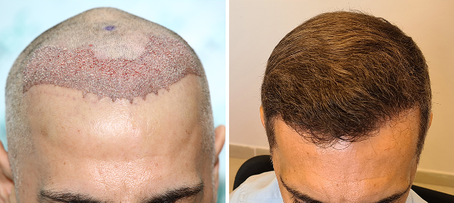 Hairline Restoration Result - 2800 FUE grafts – Before and After 8 months