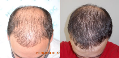 Hair transplant result – FUE 5386 – NW5 – HDC Hair Clinic