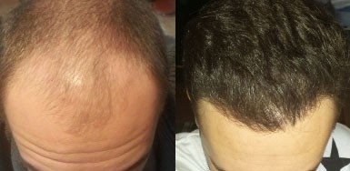 Hair Transplant Result - 3150 Grafts FUE - NW4
