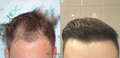 Hair transplant result – FUE 2014 – Class 2-3 – HDC Hair Clinic