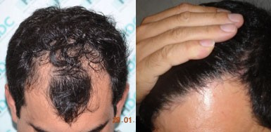 Hair Transplant Result - 3045 Grafts FUE - NW3