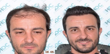 Hair Transplant Result - 3112 Grafts FUE - NW4
