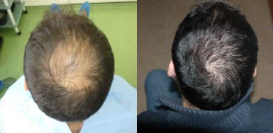 Hair transplant result – FUE 2200 – Crown – HDC Hair Clinic