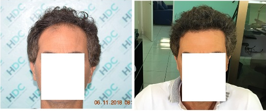 3000 grafts FUE Hair Transplant Result - 0 to 7 months