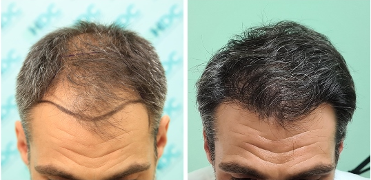 0 to 8 months After - FUE Result for 3075 grafts