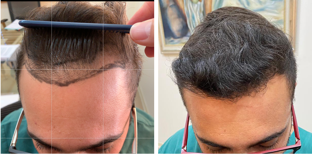 Hairline Result – 0 to 11 Months – 2100 FUE Grafts