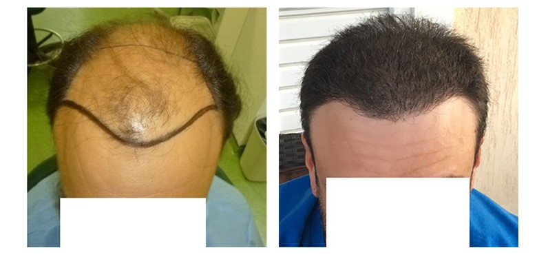 How to Evaluate a Good Hair Transplant Result