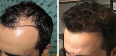 Hair Transplant Result for 2900 grafts – 15 months after – Hairline and behind