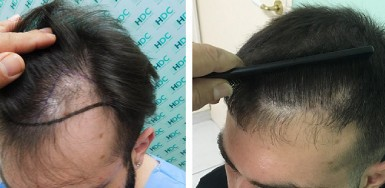 Before and after 2500 grafts – Hair transplant on Temples – Dr Christina Vrionidou