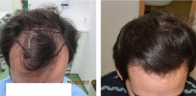 Before and 16 months after Hair Transplant – 2100 FUE Grafts