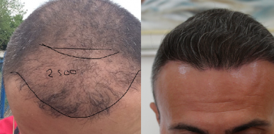 Hair Transplant Result for 2400 FUE – 3.5 years after