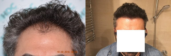 Hair transplant result – FUE 2700 – Class 3 – HDC Hair Clinic