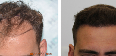 FUE Result for 3000 grafts – 0 to 9 months – NW3