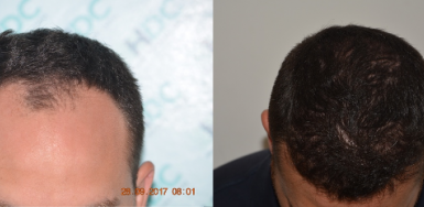 NW3 Hair Transplant Result – 2900 FUE grafts
