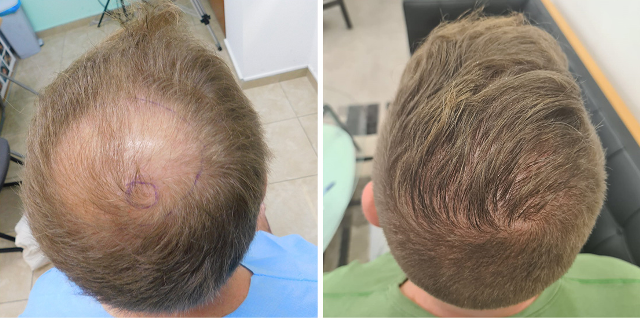 Crown FUE Result – 2900 grafts – 1 Year after