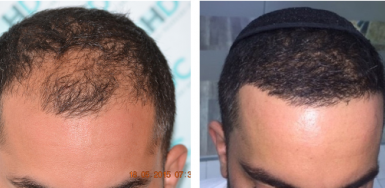 Hair transplant result – FUE 2680 – Class 3 – HDC Hair Clinic