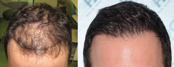 Hair Transplant Result - 2900 Grafts FUE - NW3